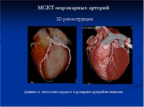 сообщил, процедура обследования главной сердечной артерии сети стали