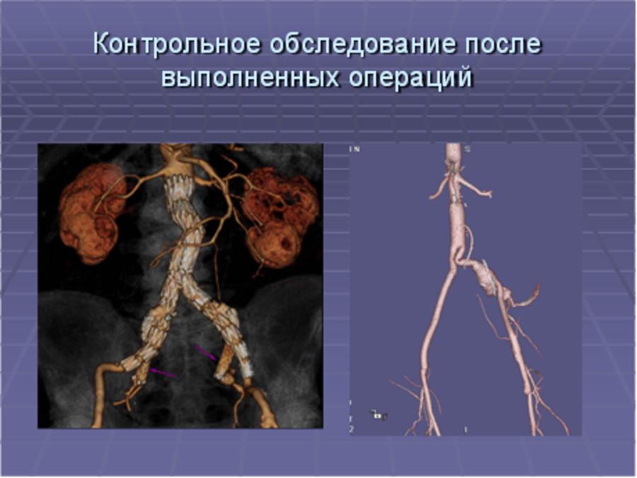 Компьютерная томография брюшной аорты